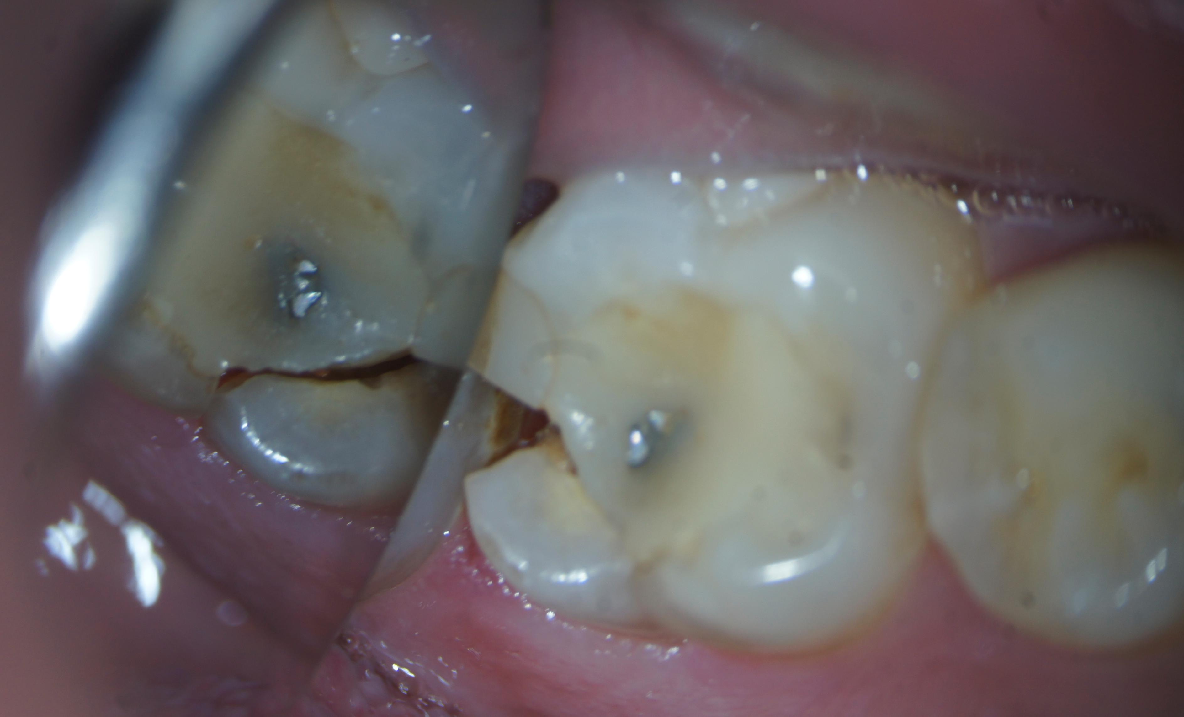 fractura dinte